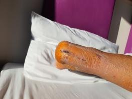 Haglundferse mit Achillessehnen Schnitt